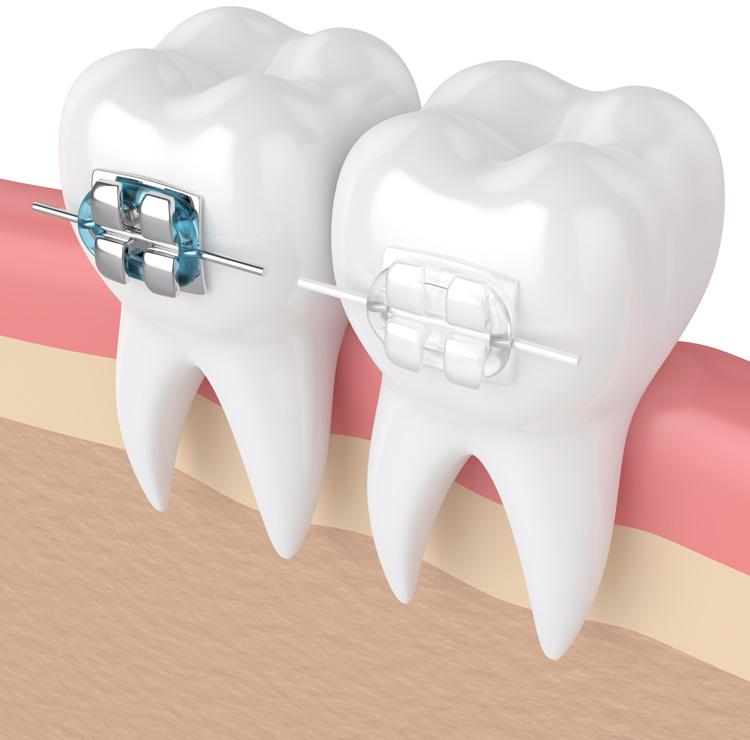 Ortodontia - Aparelhos dentários